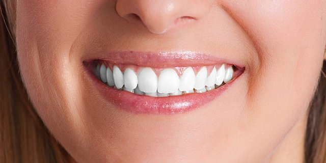 Dental Implants – A Way to Healthier Life