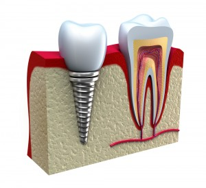Dental-Implant-Example